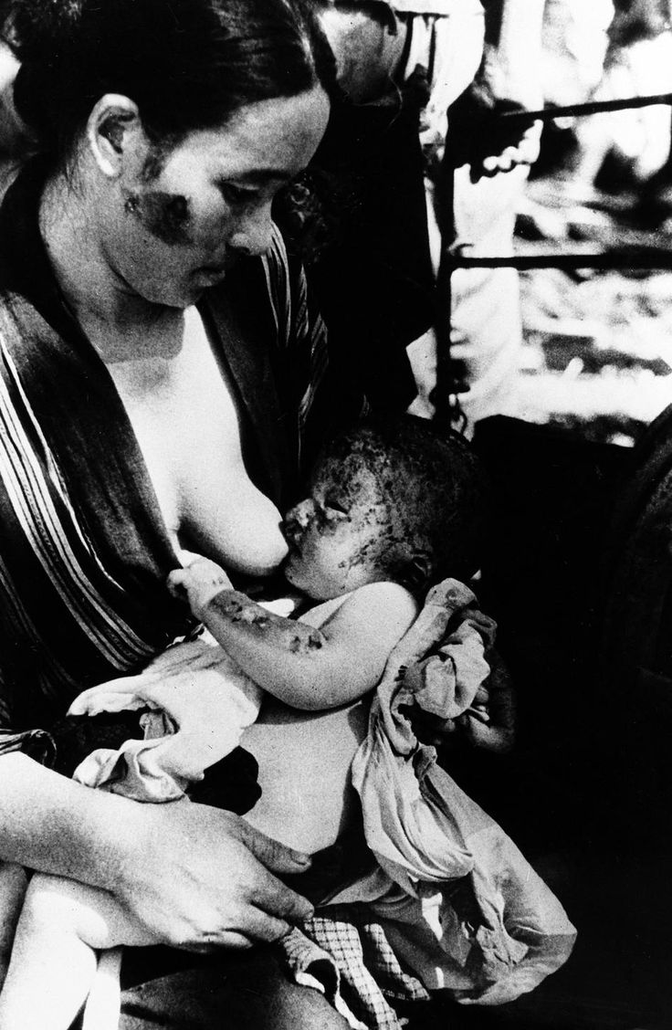 A mother and child struggle to go on living, August 10, 1945, a day after the atomic bomb was dropped over Nagasaki, Japan...