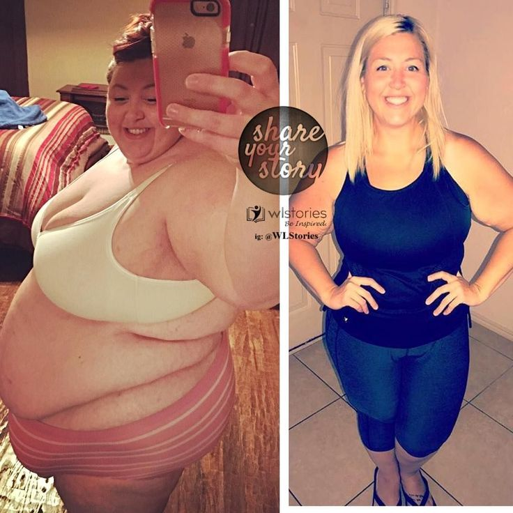 240.9k Followers, 139 Following, 3,239 Posts - See Instagram photos and videos from Weight Loss Stories (@wlstories) #weightlossbeforeafter