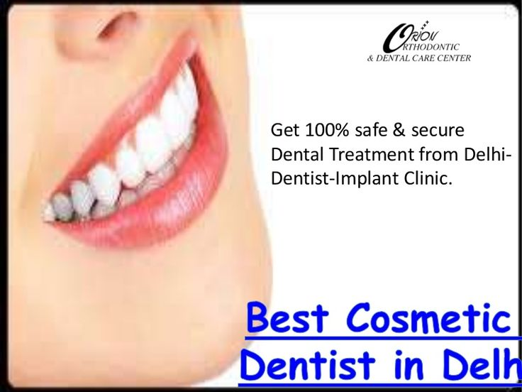 Best 25 Cost Of Dental Implants Ideas On Pinterest