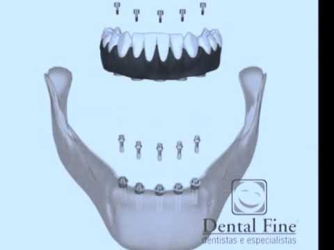 Prótese Fixa Sobre Implantes - #Protocolo Fixo: Protocolo de Branemark, esse é o nome do procedimento em que, através da instalação de alguns implantes (parafusos instalados nos ossos) é possível a fixação de prótese na maxila e mandíbula, substituindo ou evitando o uso de Próteses Totais (DENTADURAS) e muitas vezes em um único dia, você sai.... Saiba Mais: URL:  http://www.dentalfine.com.br/protese-fixa-sobre-implantes-protocolo-fixo/