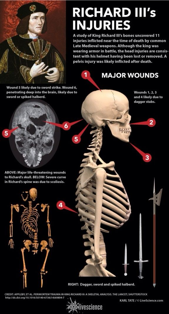 A study of King Richard III's bones uncovered 11 injuries inflicted near the time of death by common Late Medieval weapons.
