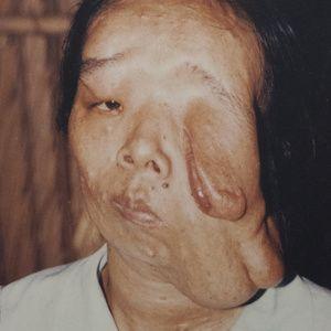 Agent orange deformities pictures of wedding