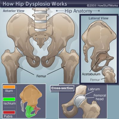Bilateral hip dysplasia - a nice overview to help explain to people what's the deal with Nolan's hips