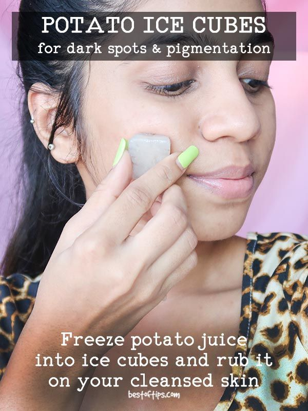 POTATO ICE CUBES FOR DARK SPOTS AND PIGMENTATION