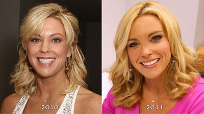 Kate Gosselin is rumored to have opted for two types of facial injections: Botox and fillers.