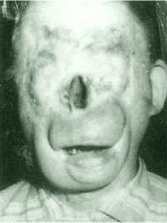 Charlie senza faccia (in inglese Charlie no face) è una leggenda metropolitana degli Stati Uniti, rivelatasi invece vera: Charlie è esistito davvero.