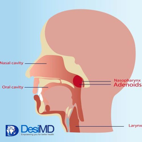 Pity, Tonsil and adenoid problems in adults that