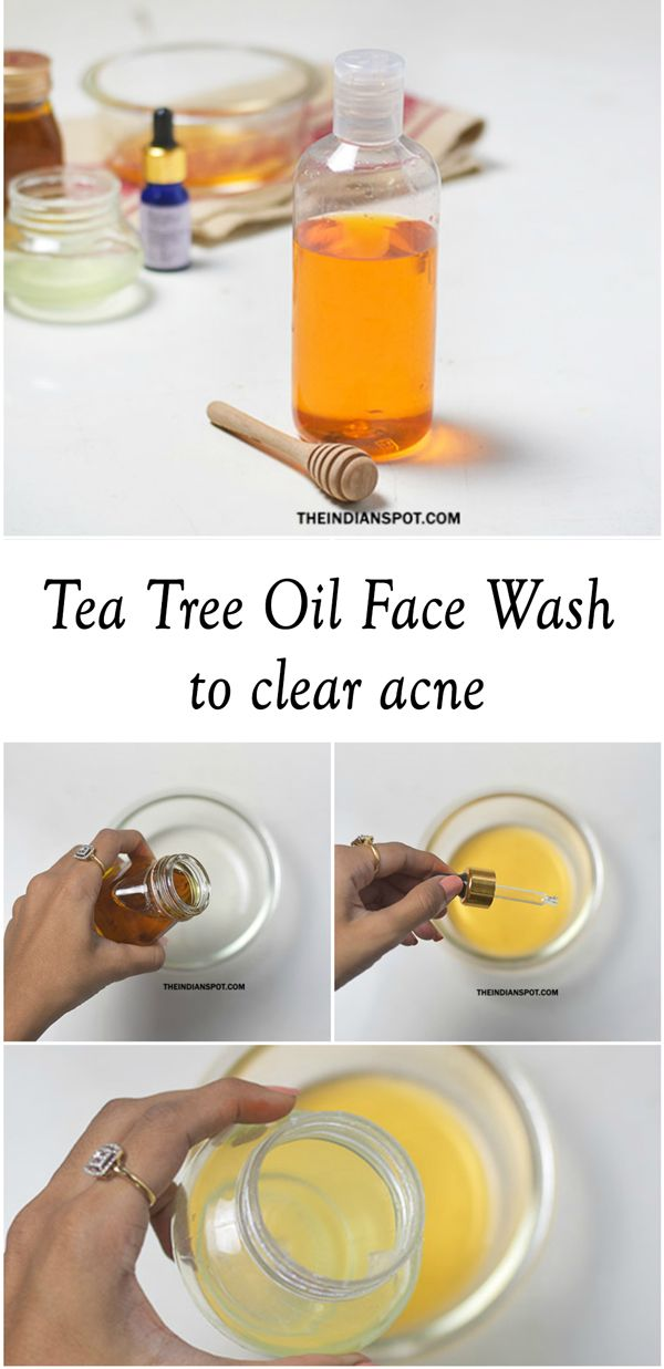 Homemade+Tea+tree+oil+Face+Wash+to+clear+acne