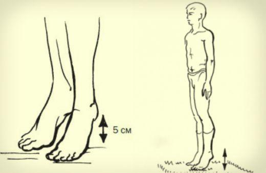В СССР было очень много простых но гениальных решений, однако не пропускаемых официальной медициной Такая чудодейственная виброгимнастика, предложенная академиком Микулиным, способна избавлять мышцы ног от избытка молочной кислоты, улучшать венозное кровообращение. Академик Орбели, перенесший инфаркт, был очень благодарен Микулину за эту виброгимнастику, которой он вылечил свое старое сердце, улучшив ток крови. Ведь упражнение воздействует не […]