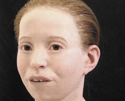 11 year old 'Myrtis', an Ancient Greek plague victim, recreated 2,500 years on, charmingly vulnerable with her overbite and misaligned teeth..