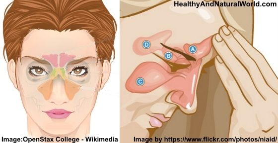 Find here how to treat sinus infection using effective home remedies including apple cider vinegar tonic and essential oils.