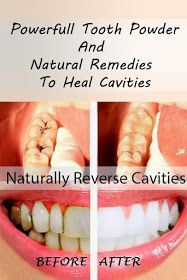 Healthy Living Vibe: How to Heal Cavities Naturally