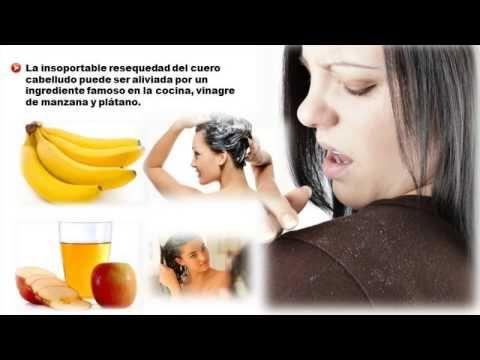 Como eliminar la caspa severa de manera natural (VÍDEO)