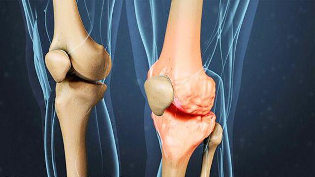 صب واي السعودية تحتفل بوصول عدد فروعها إلى 200 فرع في المملكة أخبار السعودية صحيفة عكاظ In 2021 Knee Osteoarthritis Reactive Arthritis Osteoarthritis