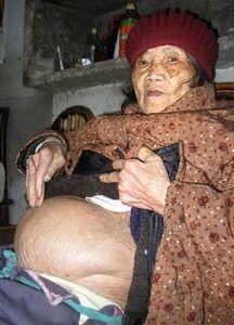 Scream World Now: Fetus mort in tantece de 50 de ani!
