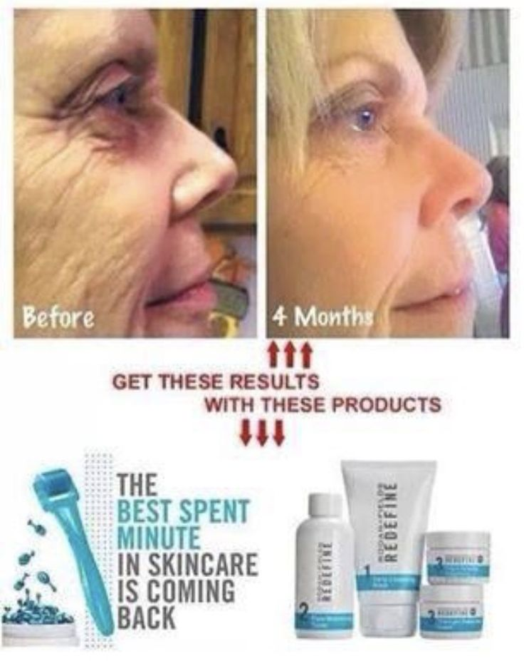 Dramatic results using @Rodan+Fields Redefine regimen and AMP MD roller with Night Renewing Serums