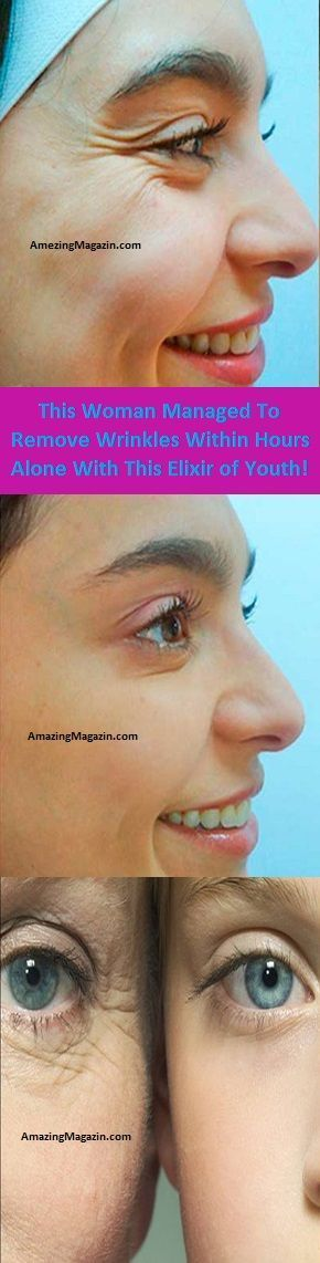 This Woman Managed To Remove Wrinkles Within Hours Alone With This Elixir of Youth!