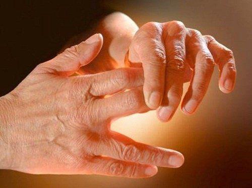 Causas del hormigueo en manos y piernas
