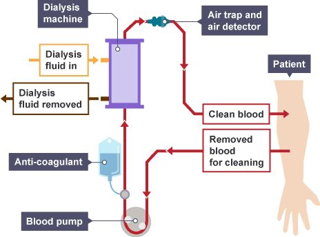 Dialysis Technology a Manual for Dialysis Technicians ...