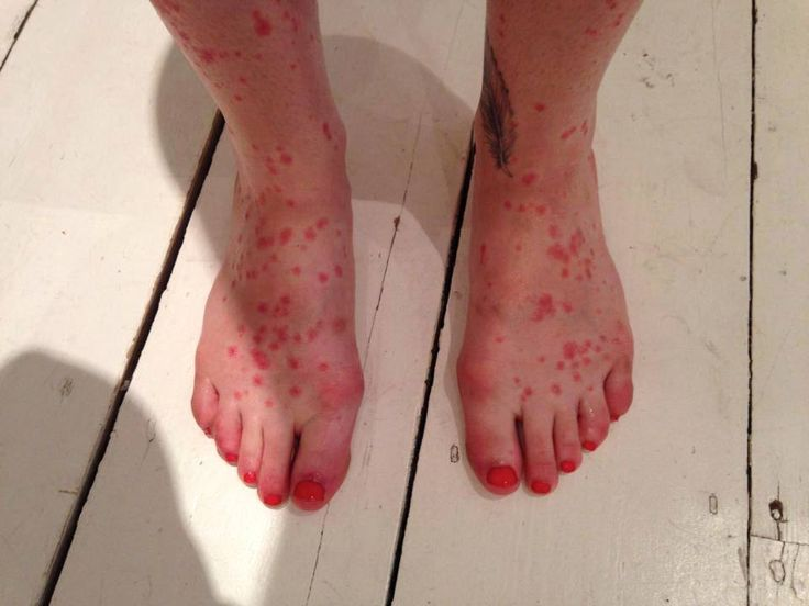 psoriasis essay In this deeply personal essay, el gibbs examines the ndis's  stuck covered in  psoriasis - head to toe, inside and out, bones groaning.