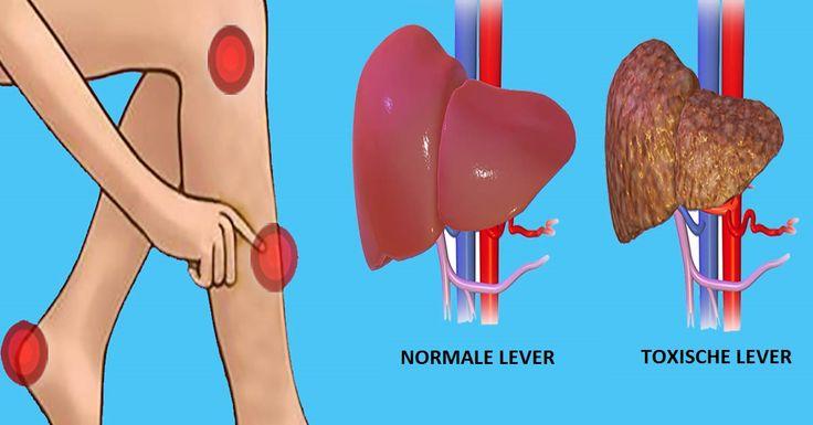 Waarschuwingssignalen dat je lever verzadigd is met giffen die je doen bijkomen. | Leesd