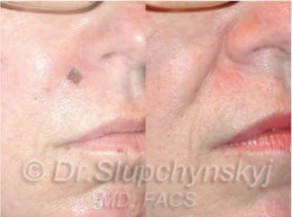 48 year old female with a history of Moh's Basal Cell Skin Carcinoma excision. Dr. Slupchynskyj performed Facial Plastic Surgery to reconstruct the Moh's defect resulting in a scarless result. #facial_surgery #cosmetic_treatment