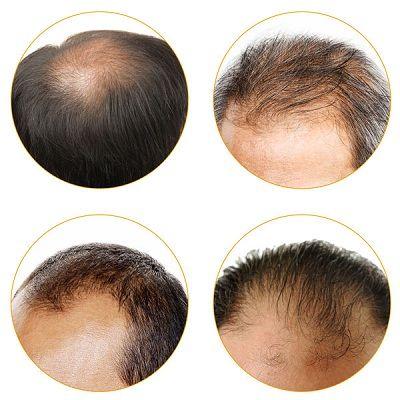 Obat Penumbuh Rambut Tradisional Yang Ampuh – kali ini ramai diantara anda dimana tengah berumur muda nampak rambut kepalanya sudah menipis malahan diantaranya ada yang sudah mulai terjadi ke…