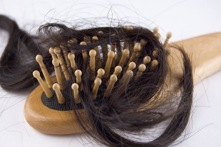 Telogen effluvium, or hair loss, is the shedding of hair that occurs during pregnancy. Hair loss is not uncommon, affecting between 40 to 50% of women.