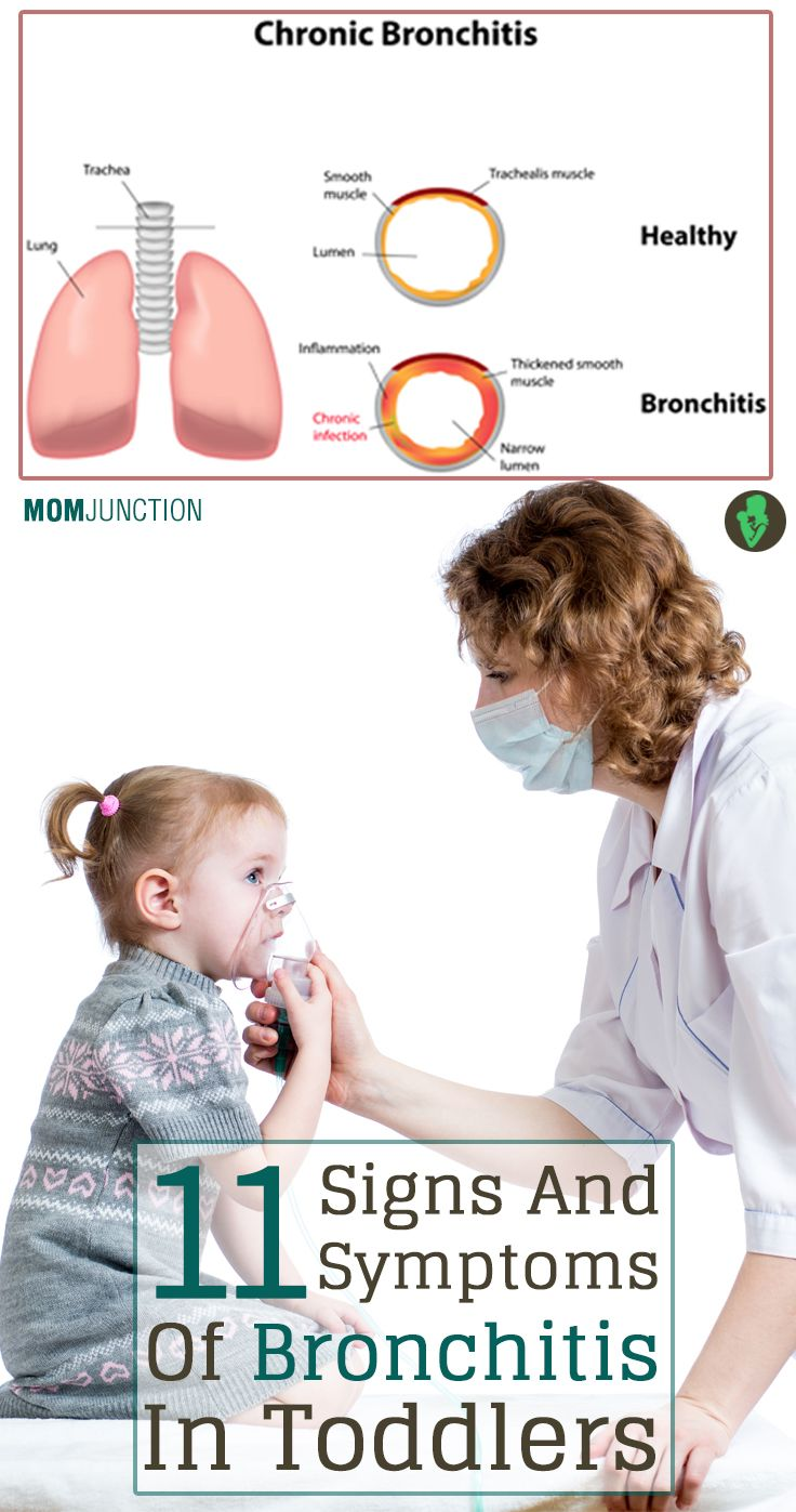 11 Serious Signs And Symptoms Of Bronchitis In Toddlers