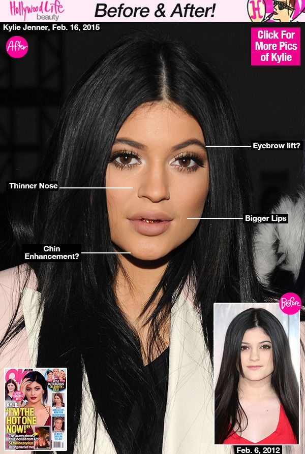 Kylie Jenner 17 Six Or More Plastic Surgeries Revealed