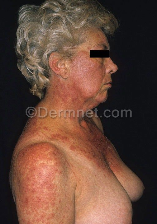 1000 images about lupus on pinterest skin rash discoid for What does a caterpillar rash look like