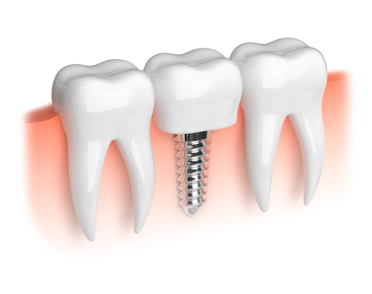 #Single_tooth_replacement in 3 days is the most effective #treatment for a #missing_tooth. The implant after being placed in the jaw, for stimulating or replacing the root, a dental crown is fixed over it.  Contact Cosmodent #India at 9999354118 (#Delhi), 8867208923 (#Bangalore), 8588097530 (#Gurugram) or write your #dental_problems at info@cosmodentindia.com #Dentist #dentistry_services #Dental_surgeons #denture #dental_bridge #dental_implant