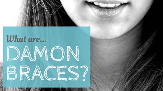 With so many styles of braces available these days, you'd be forgiven for getting confused by what's what. While most...