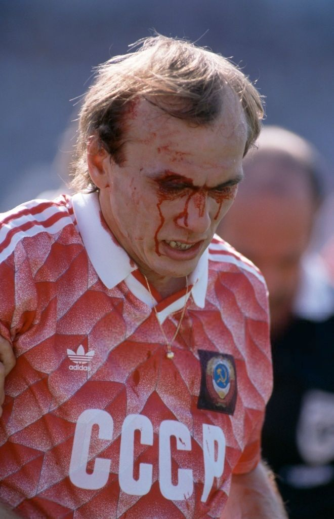 Russian footballer Vagiz Khidiyatullin pictured with blood running down his face from a cut above his eye during play for the Soviet Union team in the UEFA Euro 1988 European football championship tournament in West Germany in June 1988.