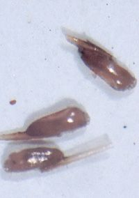 head lice eggs up close.