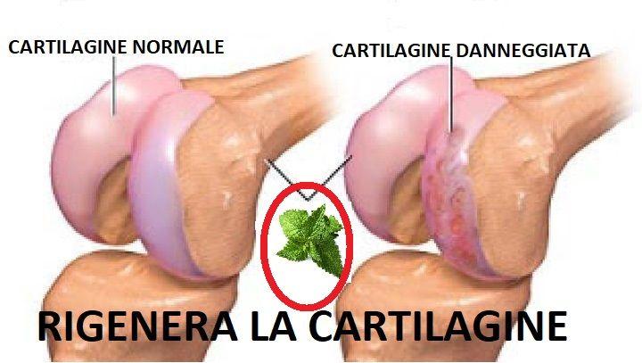 Lesioni della cartilagine del ginocchio