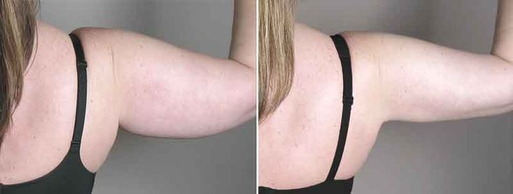 Upper arm liposuction 12 – Liposuction before and after