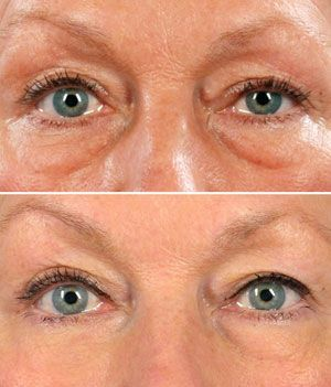 The Best Way To Reduce Eye Bags Using Facial Aerobics Exercises And Homemade Remedies