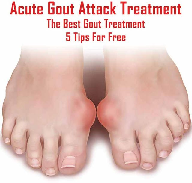 Natural Treatment For Gout Attack