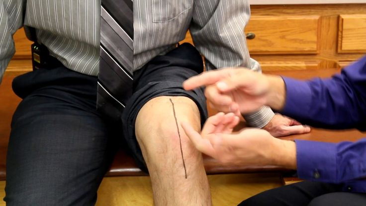 How to make a knee replacement scar look good and feel