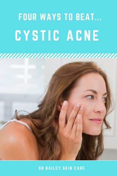 Cystic acne is a particularly troublesome form of acne... retinol, retinoid, benzoyl peroxide, Oral Antibiotics Spironolactone...