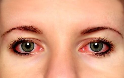 Learn how to get rid of red bloodshot eyes without eye drops. Here we've listed the best home remedies that will remove the redness from the eyes quickly
