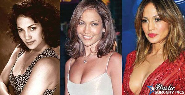 Jennifer Lopez Plastic Surgery Before and After Photos