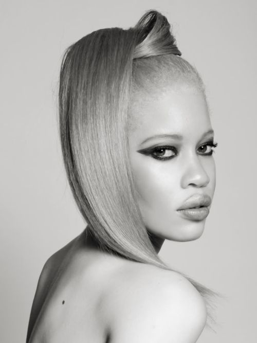 Diandra Forrest is an albino African-American professional fashion model. This green-eyed blonde with African features made a splash in the fashion world.  Albinism affects people of all ethnic backgrounds; its frequency worldwide is estimated to be approximately one in 17,000. Because their skin is not protected by melanin, they have to avoid sunlight.