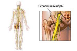 защемления седалищного нерва