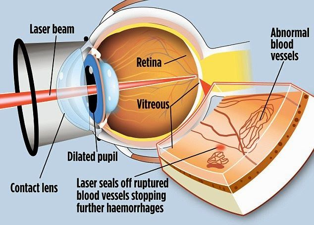 Laser Eye Surgeries Risks