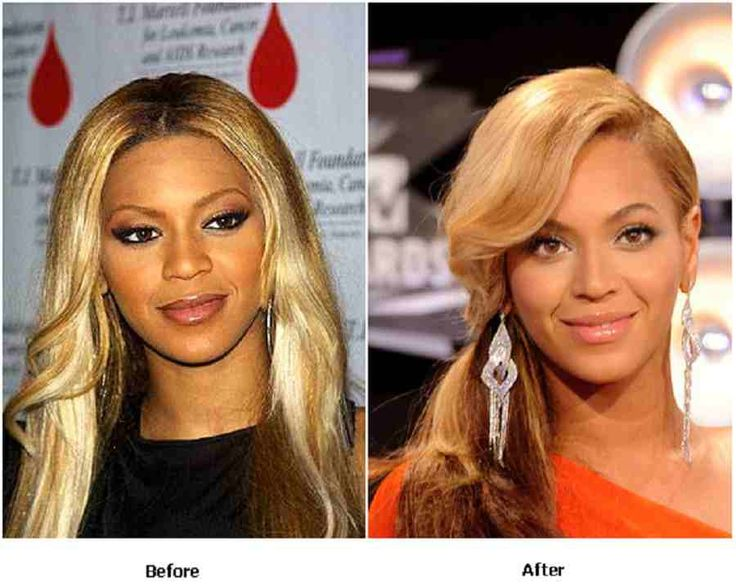 Celebrity Beyonce Nose Job Before And After With Facelift