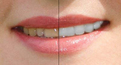 как сделать белые зубы на фотографии в photoshop