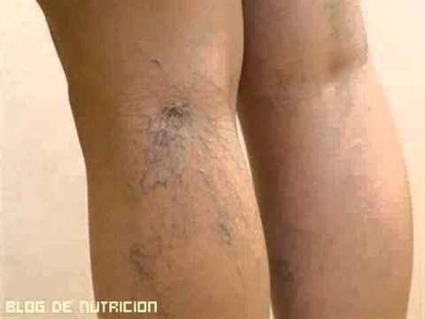 Trombosi di sintomi di vene superficiali