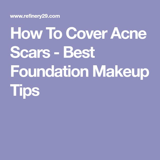 How To Cover Acne Scars - Best Foundation Makeup Tips